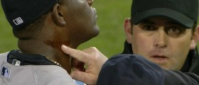michael-pineda-ejected-pine-tar-0423-1