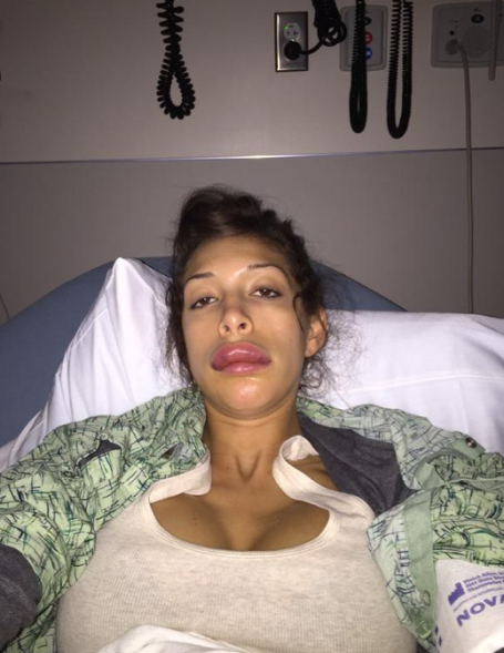 farrah-abrahams-botched-plastic-surgery-lands-her-in-the-hospital-0107-1