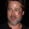 brad-pitt-scratches-scars-markings-face-0426-2