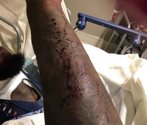 Offset Shares Photos After Car Crash: 'I'm Lucky to Be Alive'